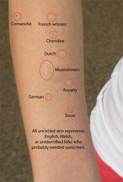funny blog pic: my arm with skin damage